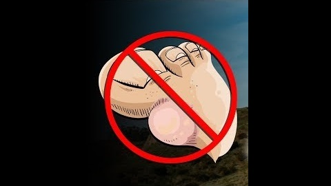 How to Fix Your Running Blisters for Good